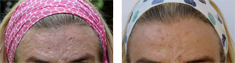 Before and after treatment for acne