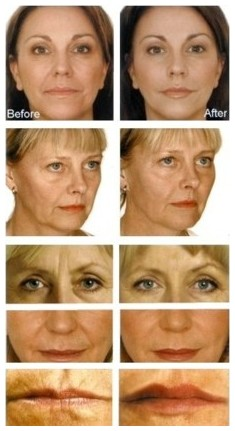 Dermal Fillers can be used to enhance the facial contours, facial lines and wrinkles particularly around the eyes, nose and lips.