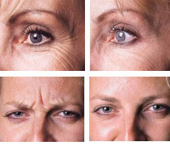 Wrinkle Reducing Injection Beauty Treatments|Wrinkle